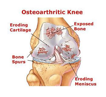 Osteoarthritis-knee