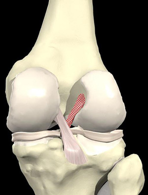 Anterior cruciate ligament or ACL
