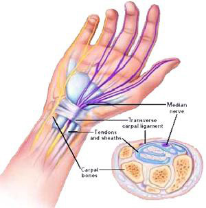 carpal_tunnel_in_wrist