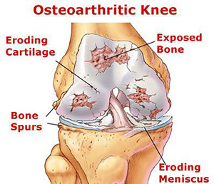 osteoarthritisofthekneejoint