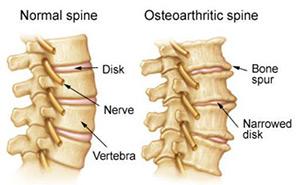 osteoarthritisofthespine